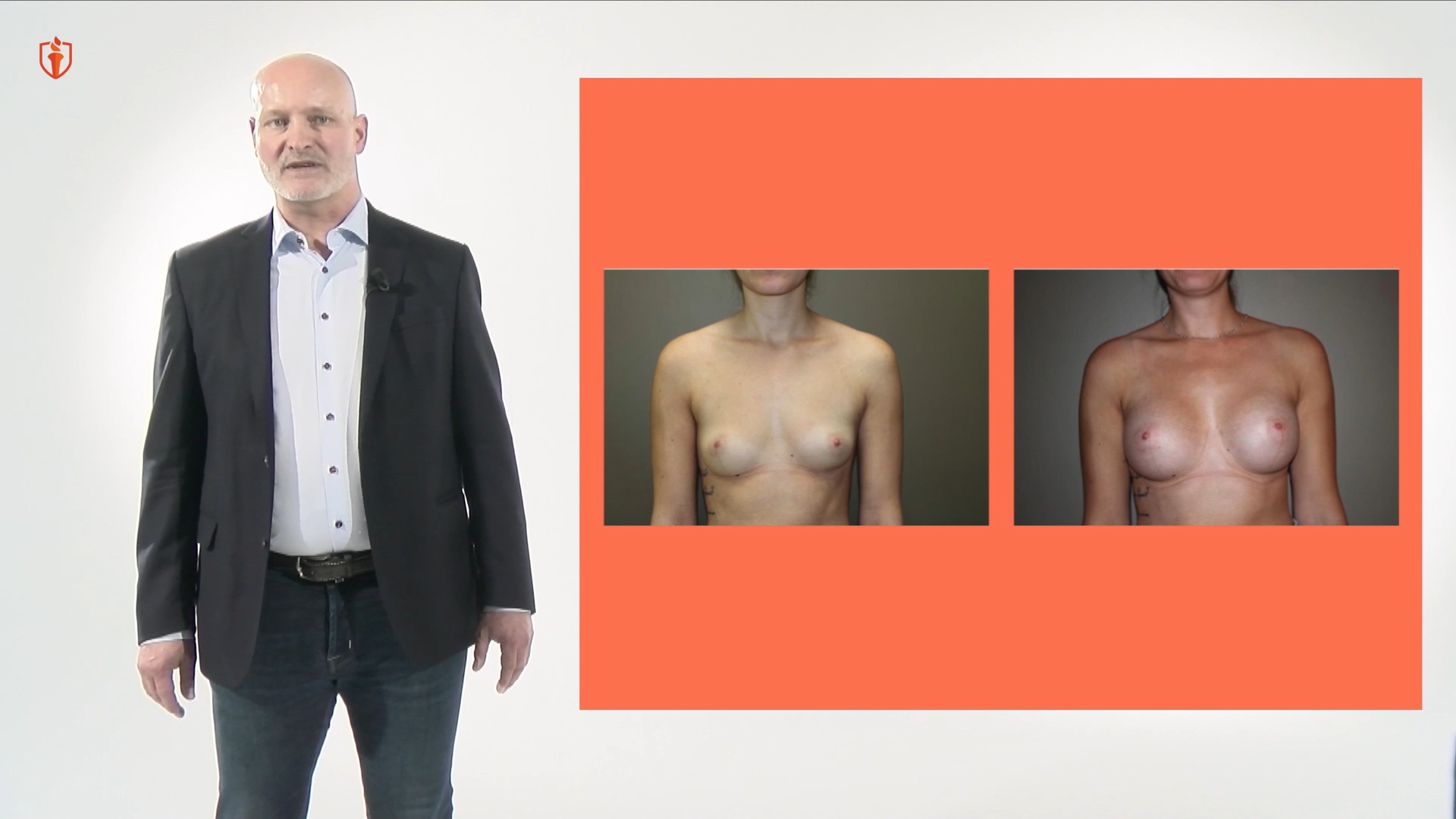 Breast augmentation with Dr. Baetge - Breast Academy New video
